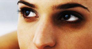 O que causa as olheiras?