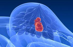 Novo tratamento para o cancro da mama desenvolvido por portugueses