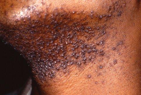 O que é a foliculite e como afeta a sua pele