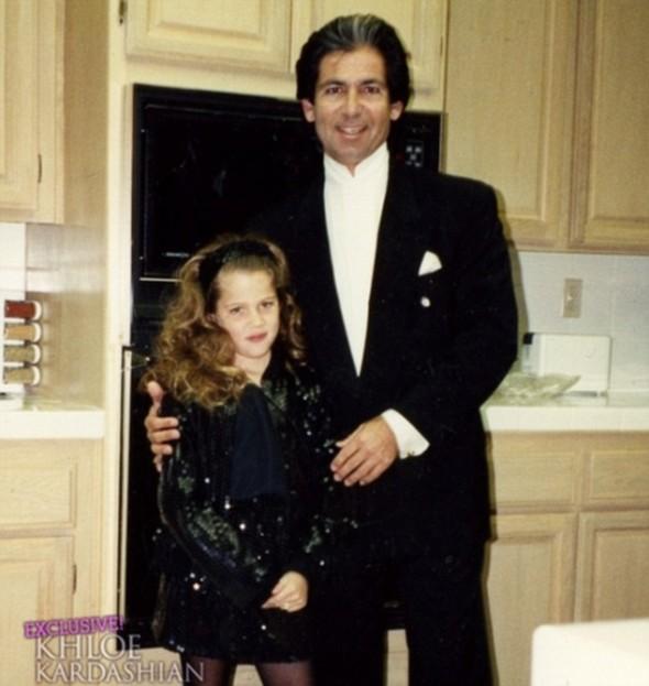 Khloe Kardashian e as cirurgias plásticas