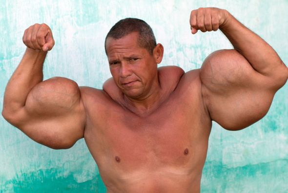 Homem usa substância perigosa para obter músculos falsos